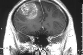 Vascularity in Glioblastoma Multiforme