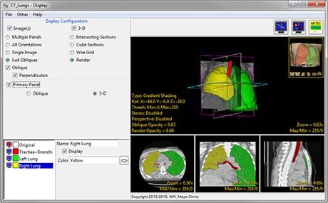 AnalyzePro_Display_3D