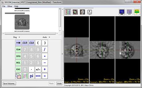AnalyzePro_Transform_ImgCalc