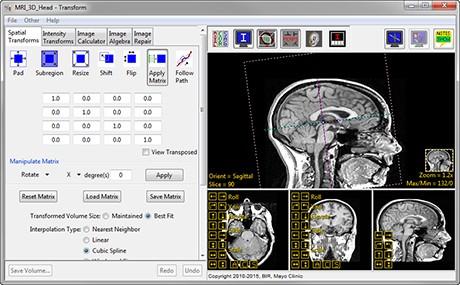 AnalyzePro_Transform_Spatial