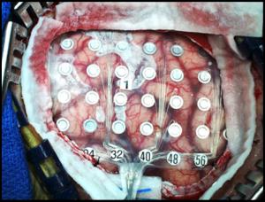electrode gride brain