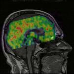 PET MRI Registration